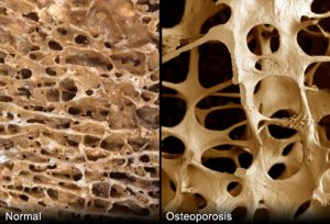 bone loss in menopause